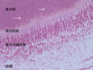 図1.象牙細管(矢印)は象牙前質からエナメル・象牙境まで走行している。