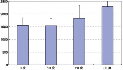 アバットメント設置角度の評価