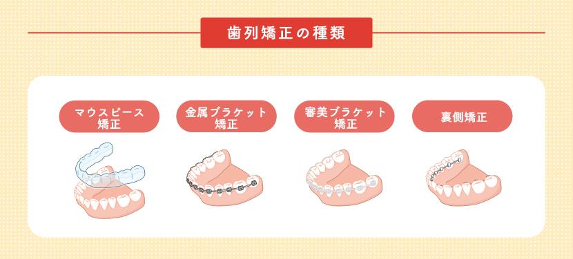 歯列矯正について