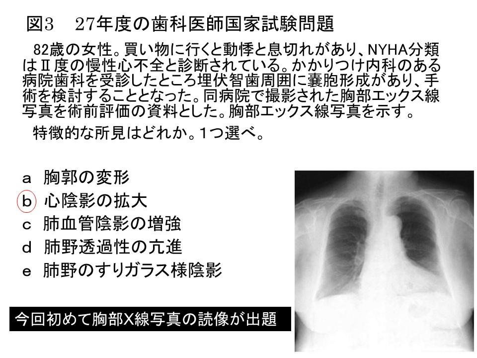 27年度の歯科医師国家試験問題