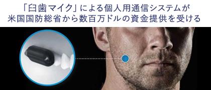 DT_臼歯マイク