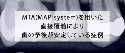 today_MTA(MAP-system)を用いた直接覆髄