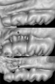間葉系幹細胞の投与で歯周病の進行抑制