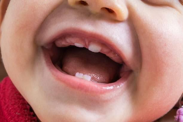 【歯科医師監修】赤ちゃんの歯並びが気になる!? その要因とよくする方法
