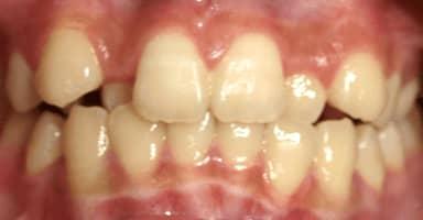 「歯の色、歯並び、噛み合わせ」の治療はリスクだらけ…思わぬ副作用に苦しむ人が続出