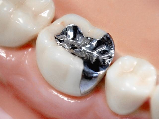 治療したはずなのに…銀歯の下がまた虫歯に!? 再発するカラクリとは