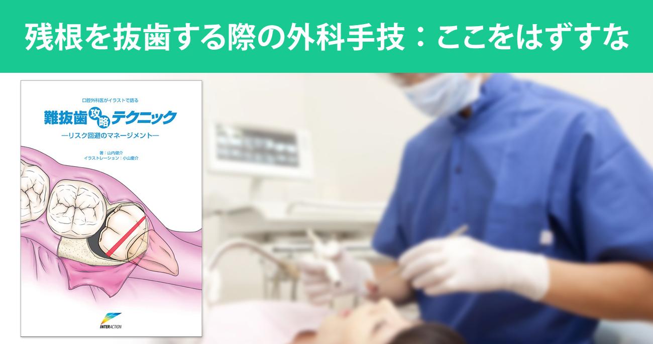 残根を抜歯する際の外科手技:ここをはずすな