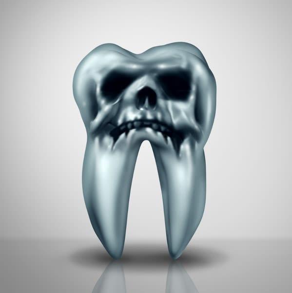 歯周病を放置する恐怖 膵臓がんリスクが上昇し2倍以上に
