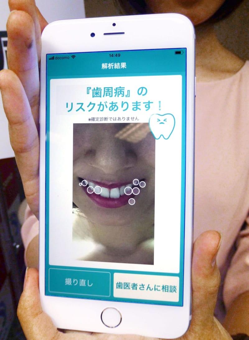 AIで歯周病やがん発見 東北大とドコモが共同開発