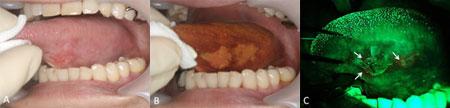 光反応性物質に着目して口腔がんを鑑別