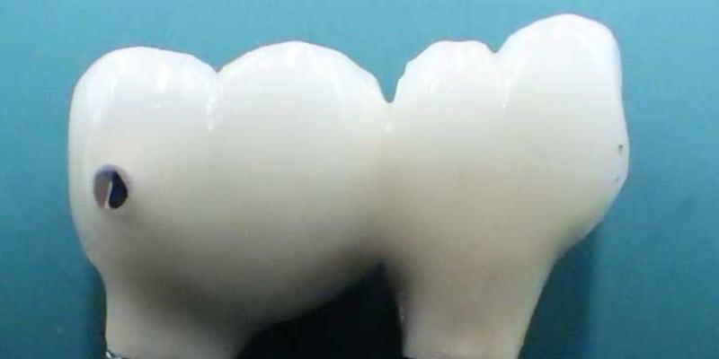 <九十九里浜の女性切断遺体>3~10年前に治療か 下奥歯のインプラント