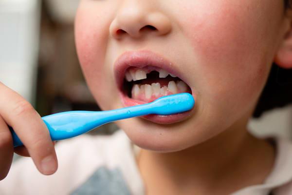 「軟らかいものばかり」は間違い 歯並びの悪い子供が増えた理由