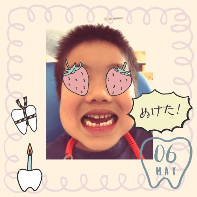 初めて歯が抜けたら記念写真を!ちなみに抜けた歯ってどうしている?