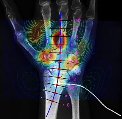 東京医科歯科大学・金沢工業大学・リコー、「脊磁計」を用いた腰部・頚部・末梢神経の生体磁界計測に成功