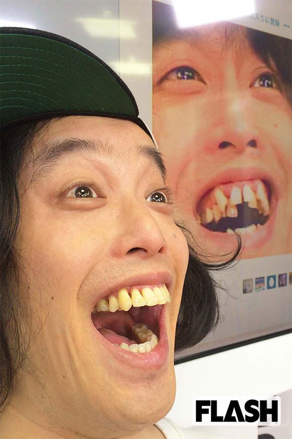 やついいちろうが語る「歯科矯正」中高年にウケて朝ドラへ