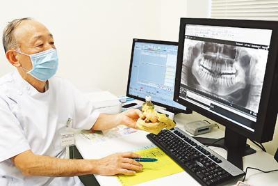 口腔がん 検診低迷 県内専門医「関心持って」