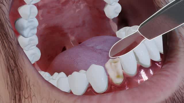 本格的歯科医シム『Boring Game』発表―検査や歯列矯正、複雑な手術も