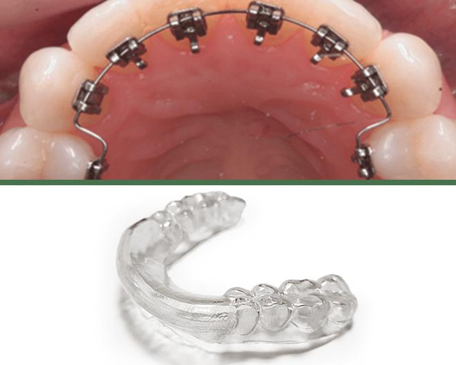 【プレスリリース】見えないワイヤーの矯正治療システム「ビセットライン」サービス開始10ヶ月で登録歯科医院数が100を突破!