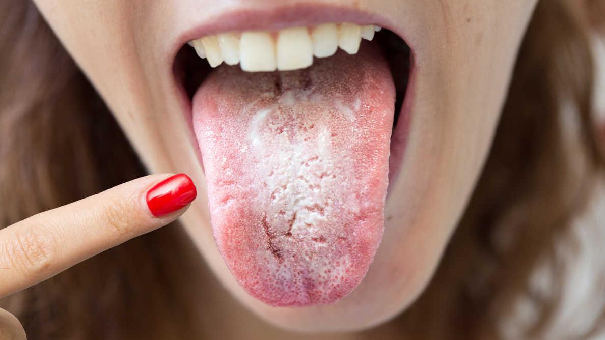 """""""コロナ舌""""-口腔内症状に注意を払うよう歯科医師に要請"""