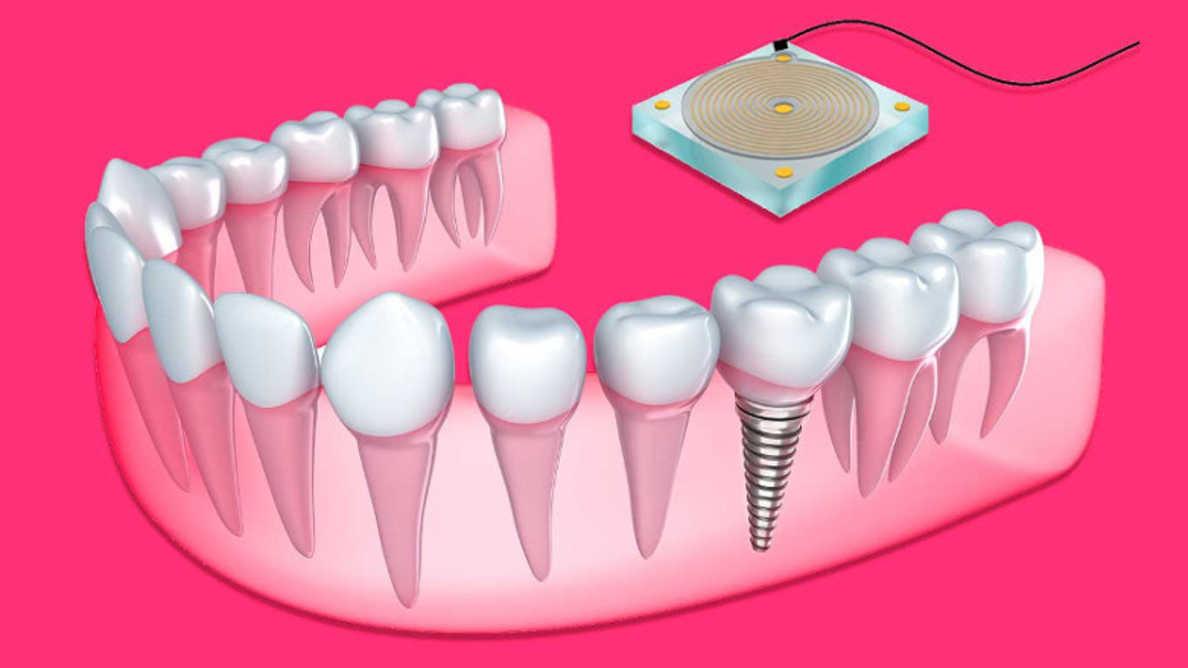 新しいセンサーが歯科インプラント周辺の骨の成長を監視