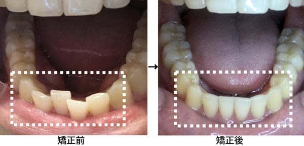 オンラインによる歯列矯正 医院に通わず平均3カ月で終了