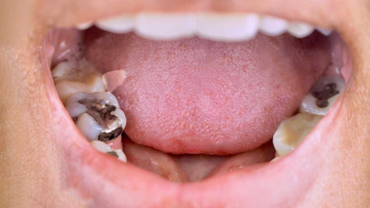 北アイルランドは歯科用アマルガムの段階的廃止を「実行不可能」とする