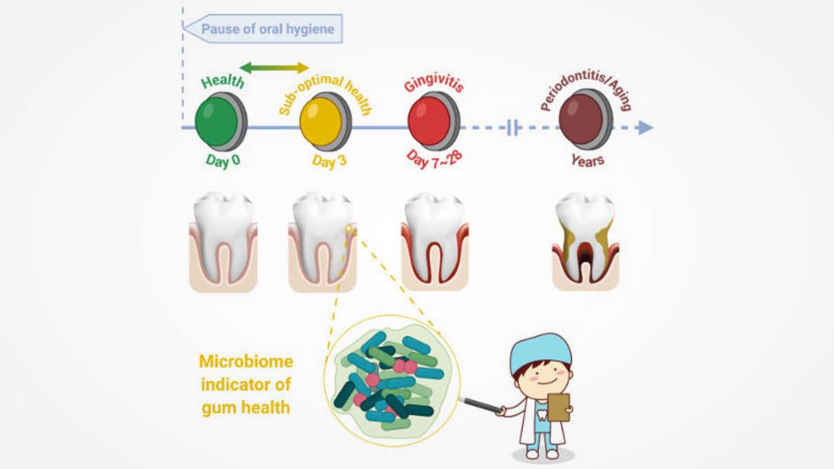 歯肉炎、歯周炎、加齢をつなぐ歯肉の無症状状態を特定した研究