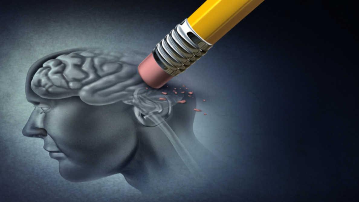 歯周病とアルツハイマー病の関連性を示す新たな証拠を発見した研究