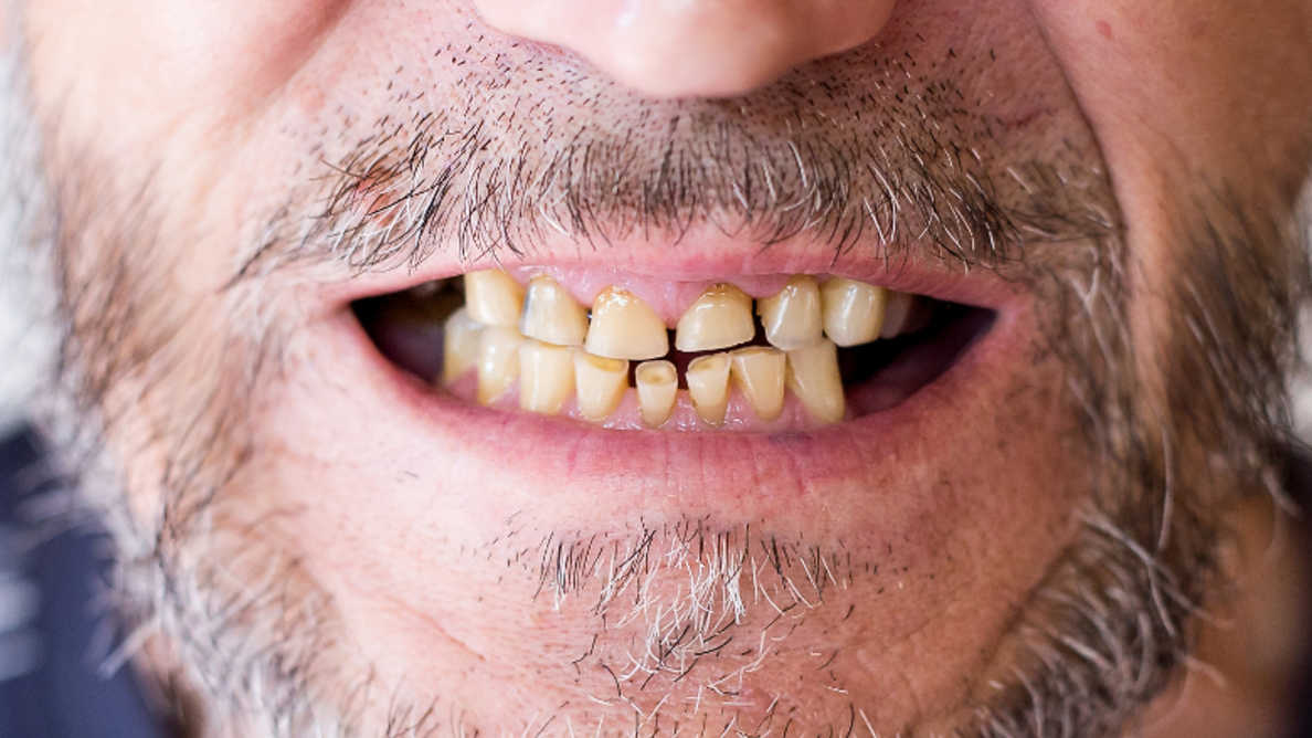 パンデミックによるストレス性口腔疾患の増加