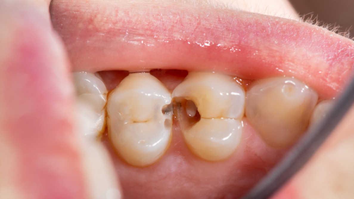 歯周病と体の防御反応に関する新たな知見を得た研究