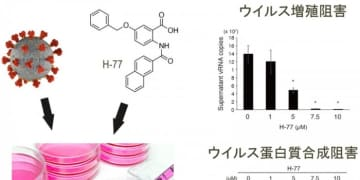 新型コロナの増殖を抑制する化合物発見 治療薬にも期待 広島大など