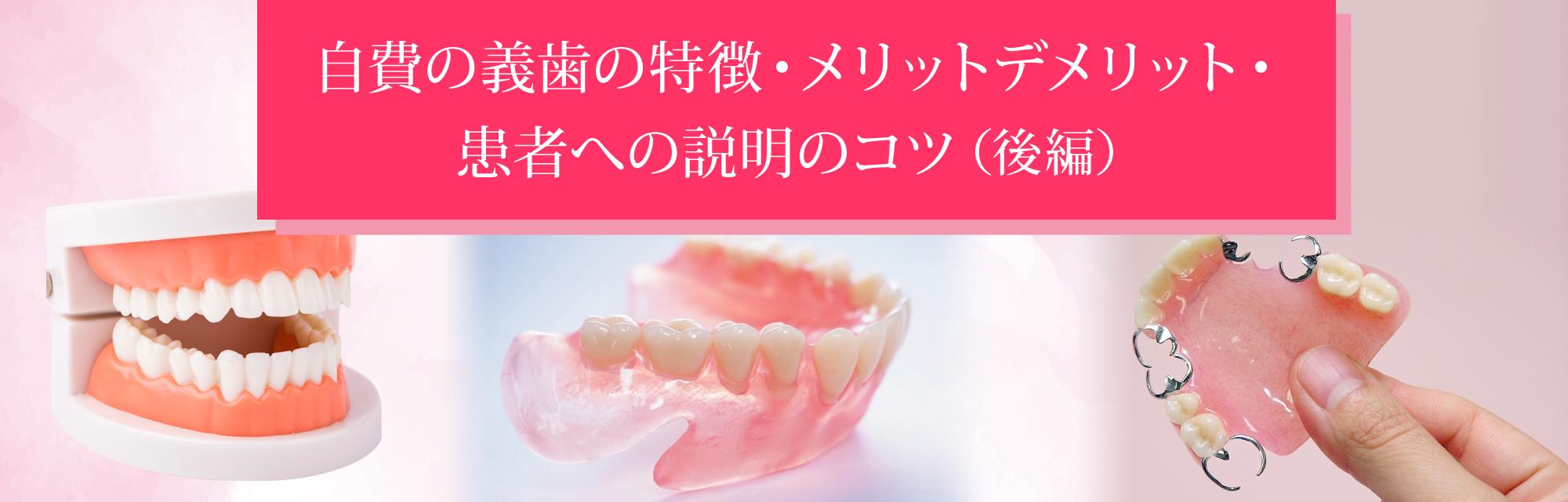 自費の義歯の特徴・メリットデメリット・患者への説明のコツ(後編)